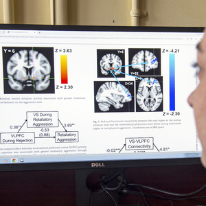 A student views brain scan imagining and analysis on a computer screen.